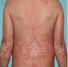 Psoridex krém, összetétele - mellékhatásai?