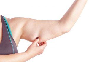 Somasnelle Sleeve karcsúsító ujjak, hogyan kell használni, hogyan működik , mellékhatások